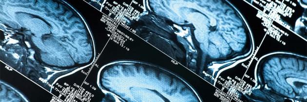 Endoskopowa chirurgia  podstawy czaszki