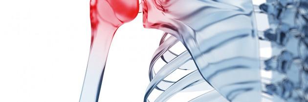Scyntygrafia układu kostnego